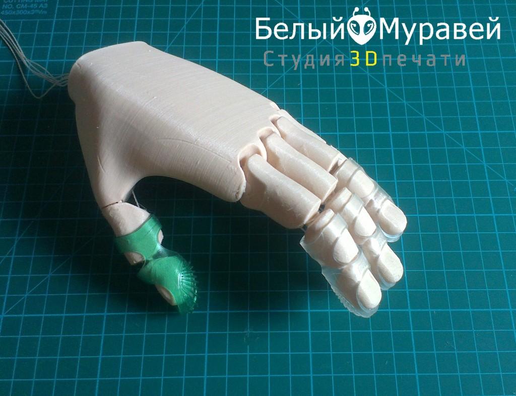 3D печать в области протезирования